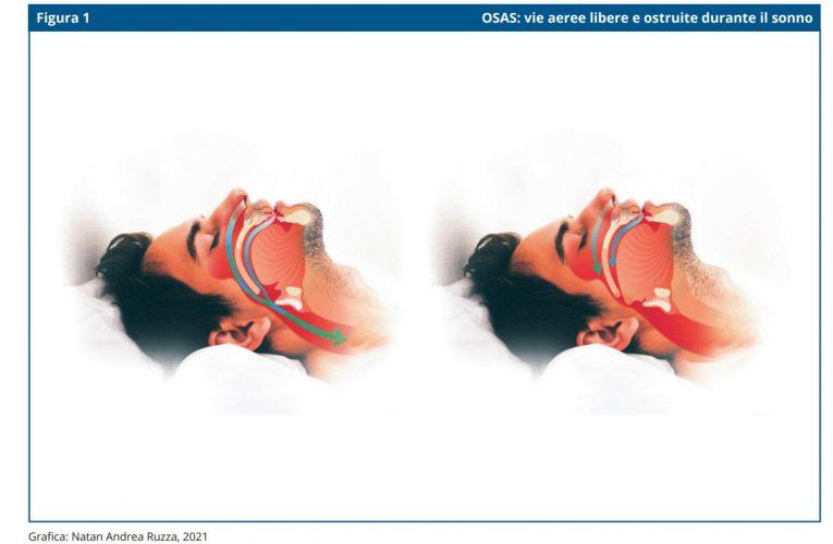 La sindrome delle apnee ostruttive